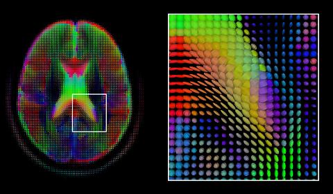 Brain Tumour Detection using Deep Learning