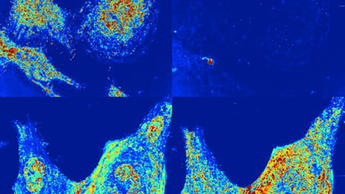 Cancer Prediction using Data Mining technique